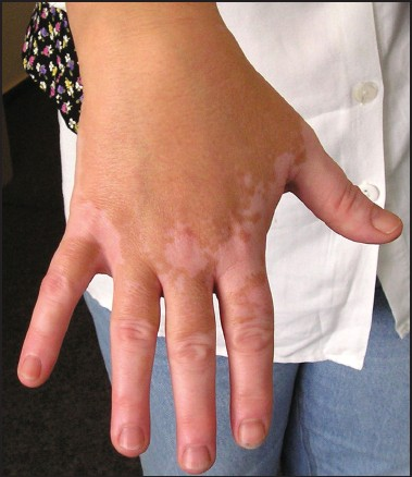 Hypopigmentation: Causes and cures for light skin patches